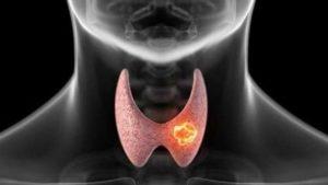 Curare la tiroide: ecco come