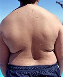"""Salute, una """"epidemia"""" di obesità: nel mondo 500 milioni"""